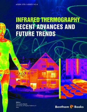 Infrared Thermography Recent Advances and Future Trends