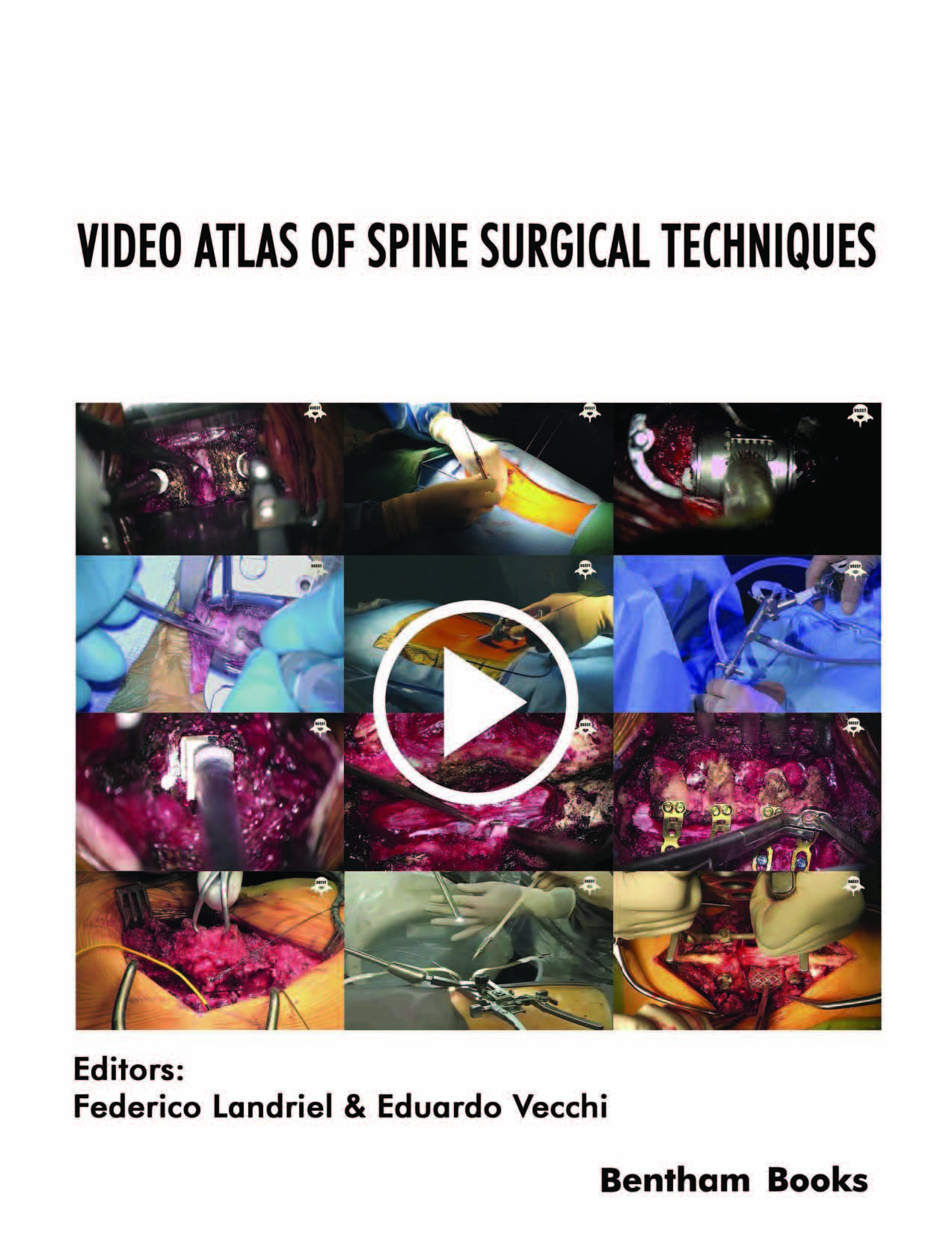 A video atlas of neuromuscular disorders array ebooks by subject bentham ebooks rh ebooks benthamscience com fandeluxe Images