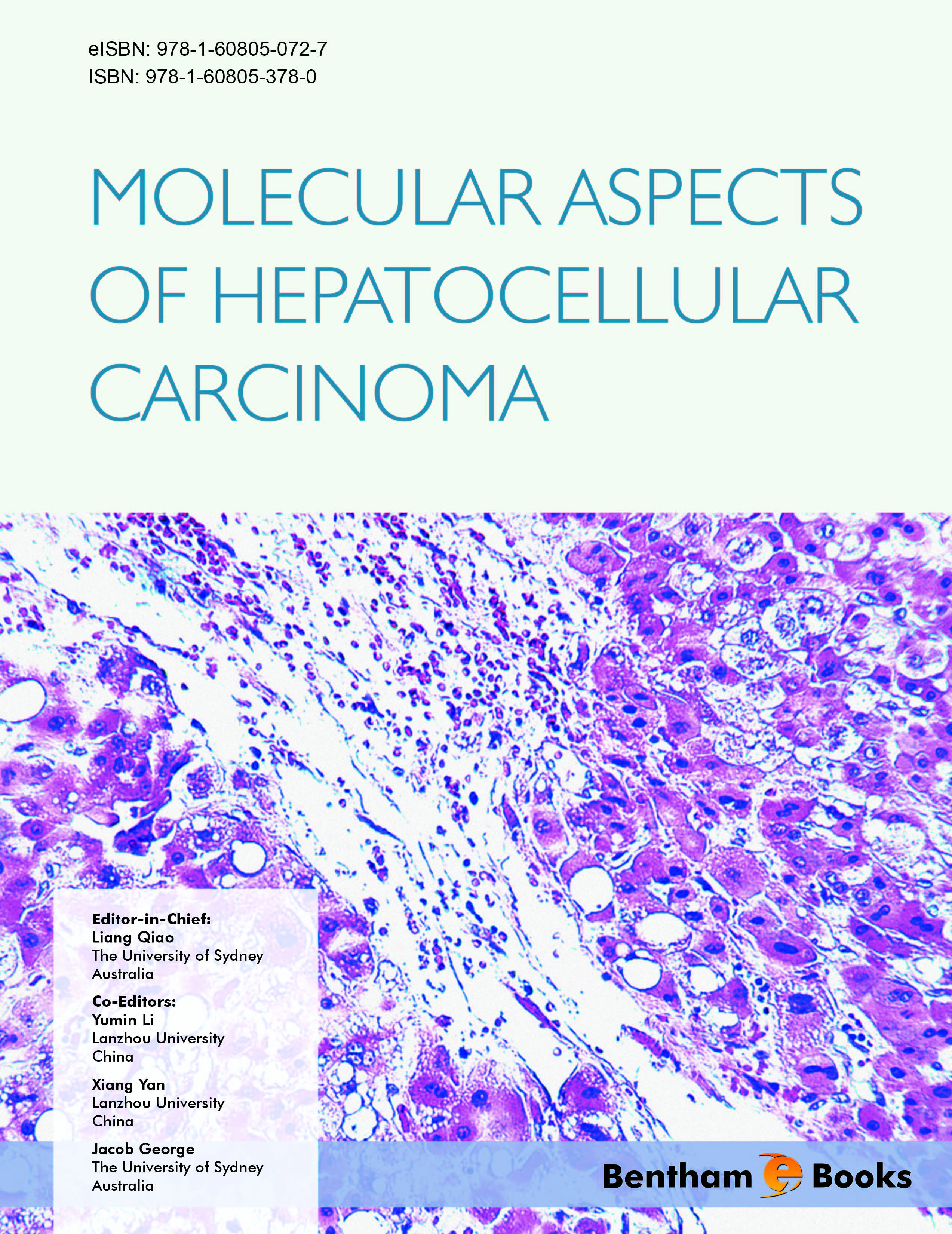 Molecular Aspects of Hepatocellular Carcinoma