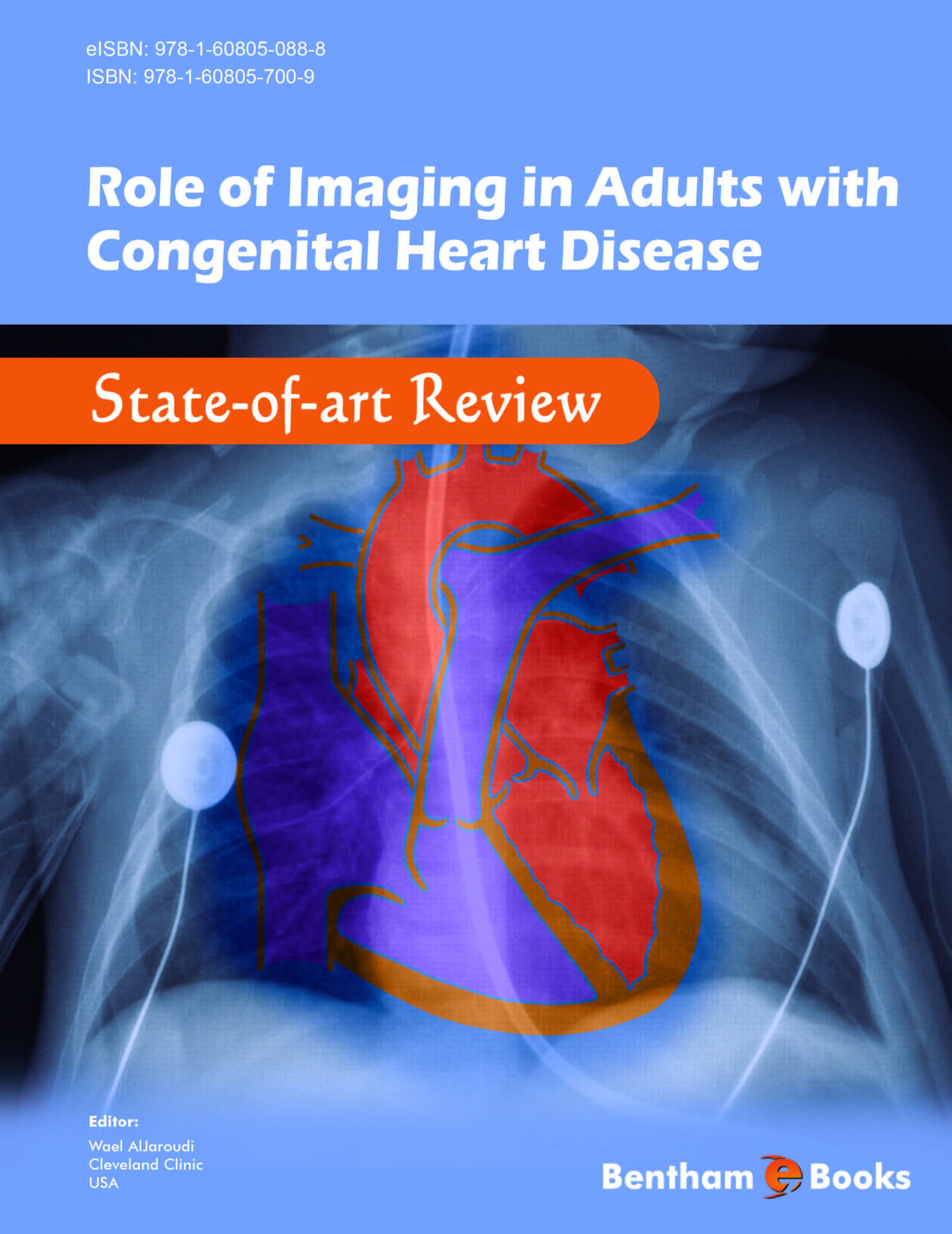 Role of Imaging in Adults with Congenital Heart Disease: State-of-art Review