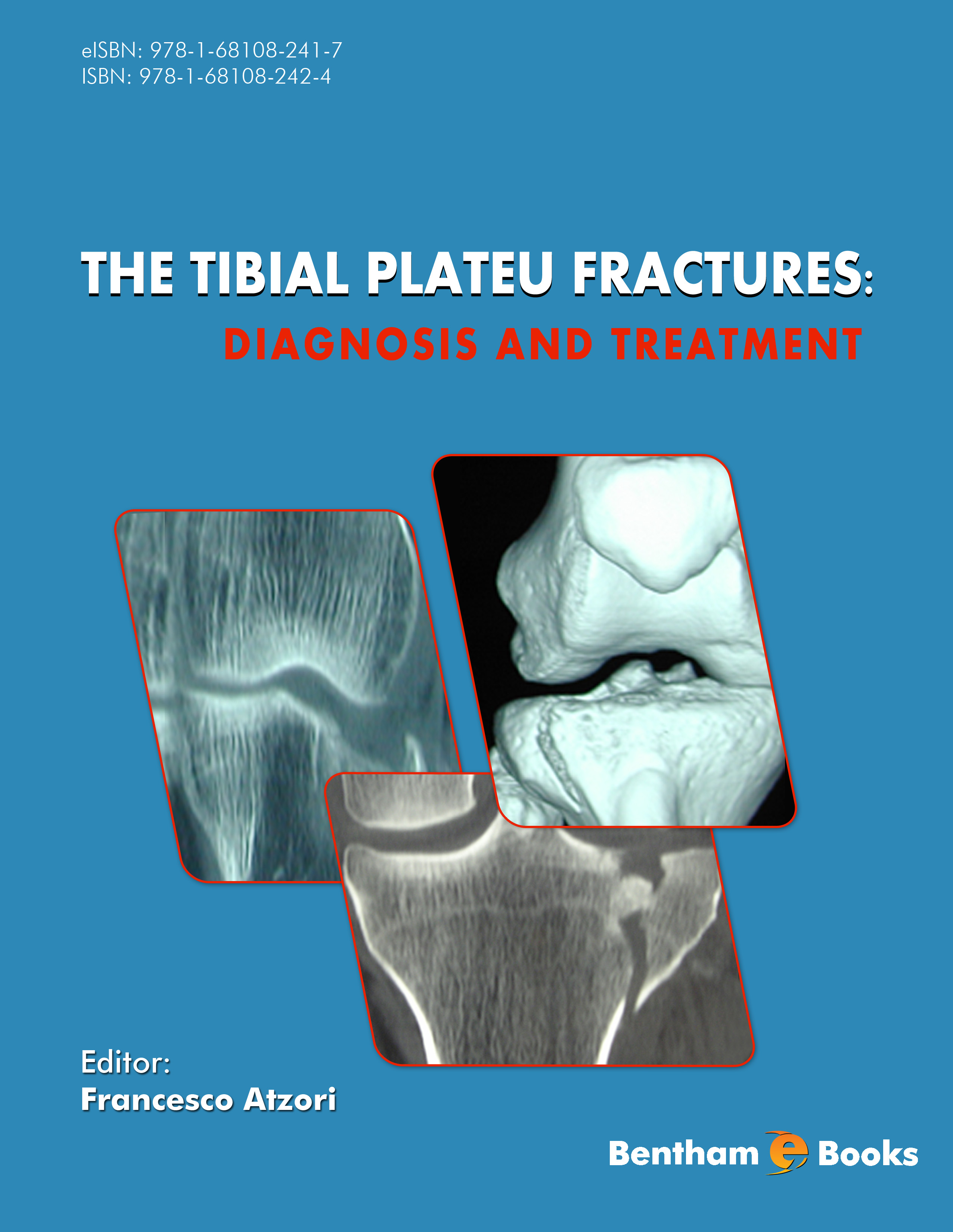 The Tibial Plateau Fractures: Diagnosis and Treatment