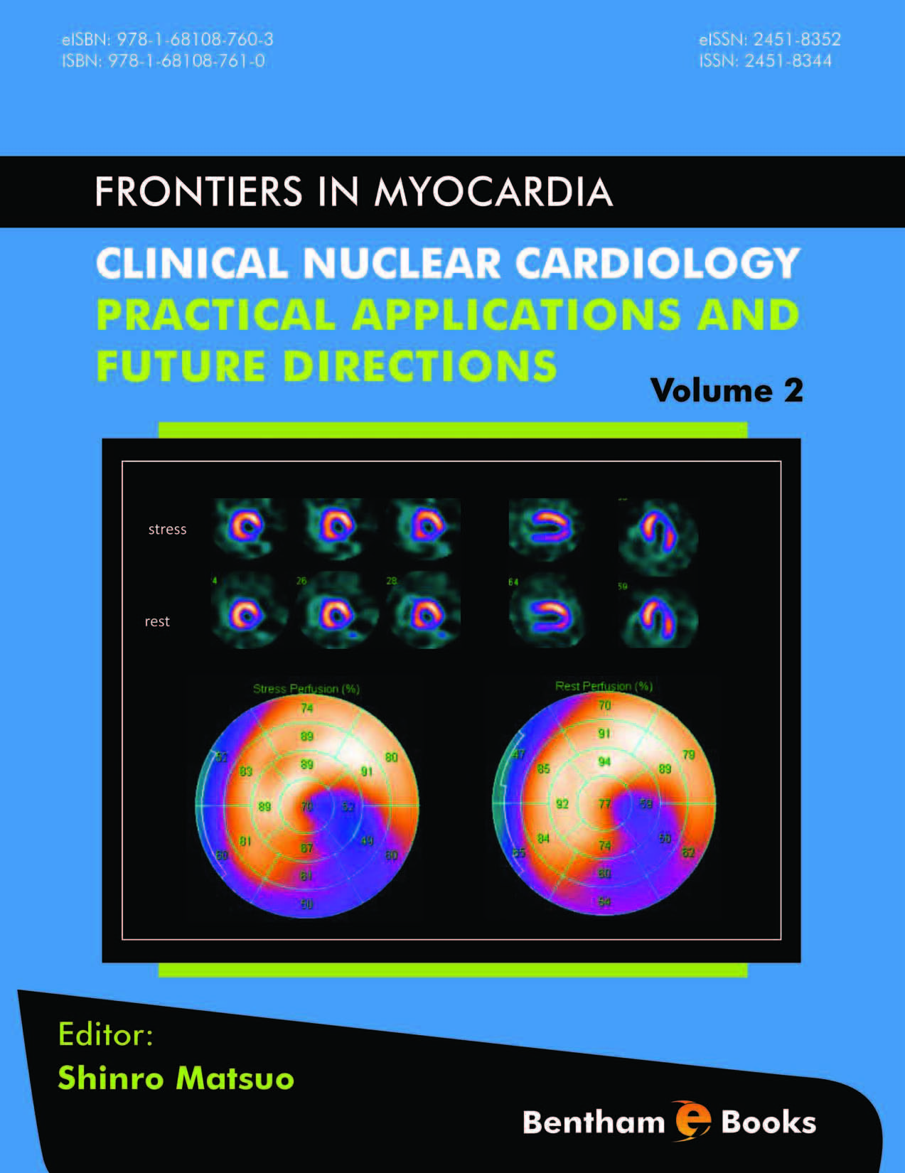 Clinical Nuclear Cardiology: Practical Applications and Future Directions